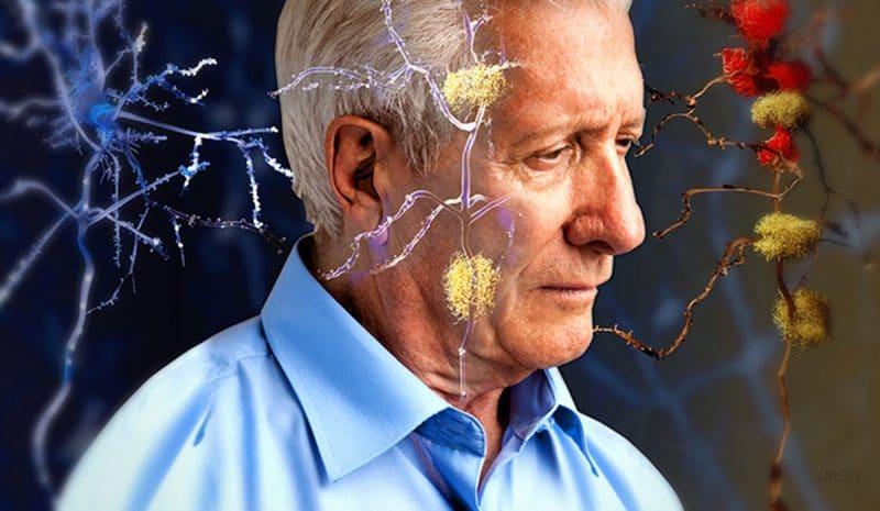aceite de coco tratamiento contra el alzheimer