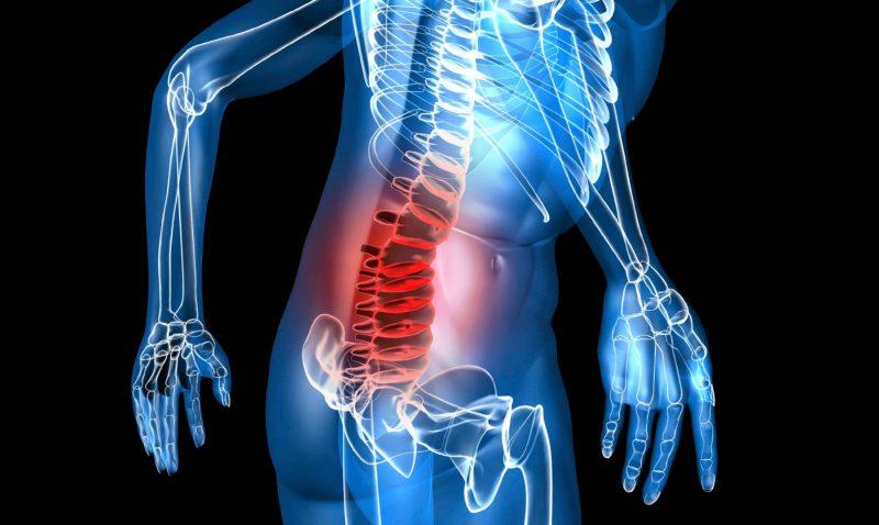 harpagofito para artritis reumatoide