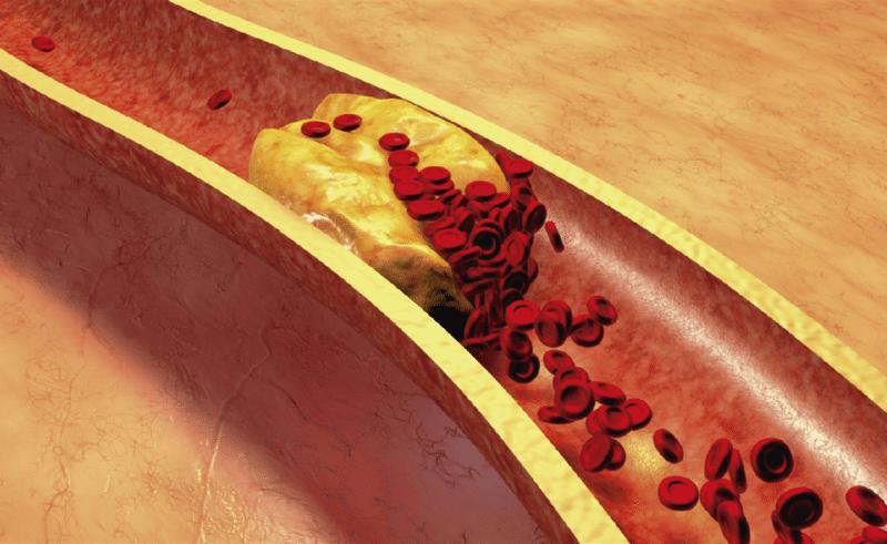 harpagofito para el colesterol